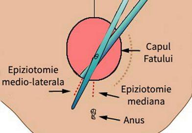 O GRAVIDĂ INFORMATĂ: Epiziotomia, o intervenție controversată